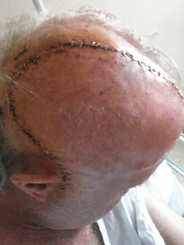 Tom's head after surgery
